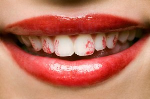 Lipstick-on-teeth
